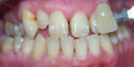 Tooth Crown Before