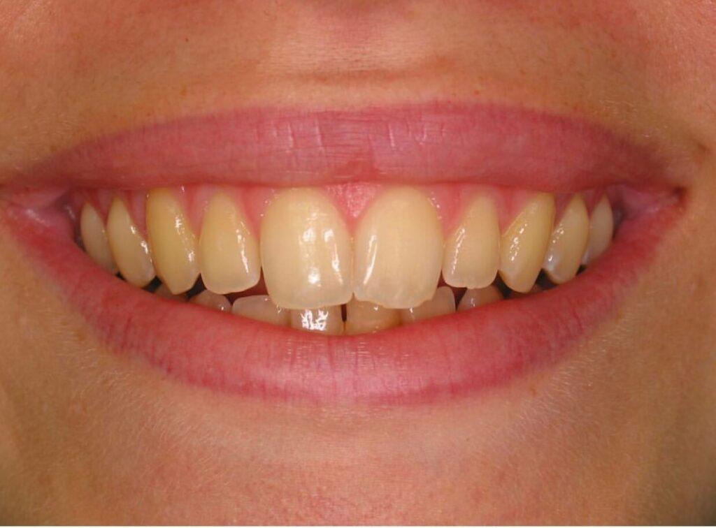 Teethdiscolouration 1024x756
